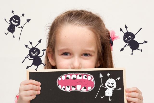 抜歯 虫歯