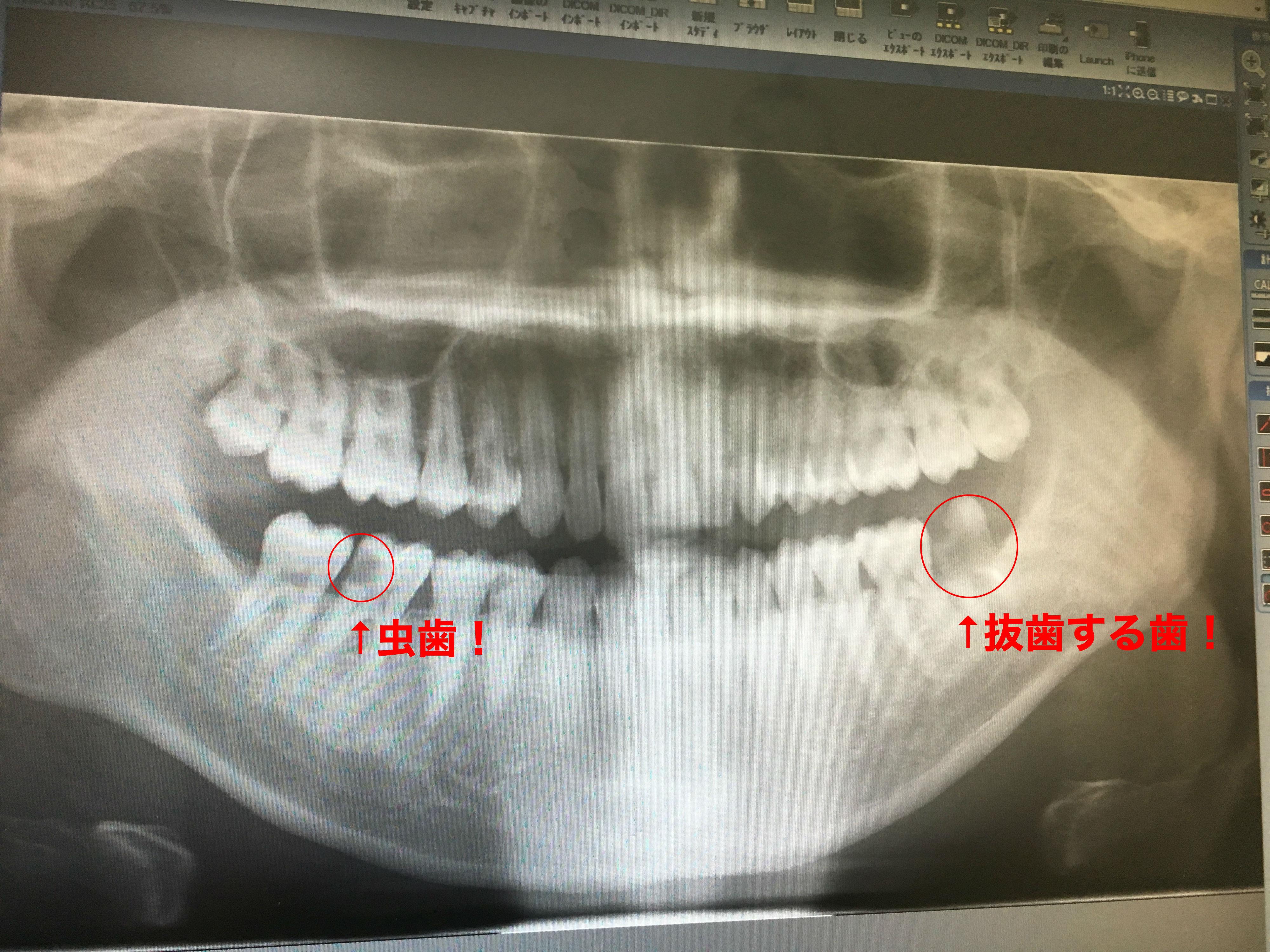 虫歯 抜歯