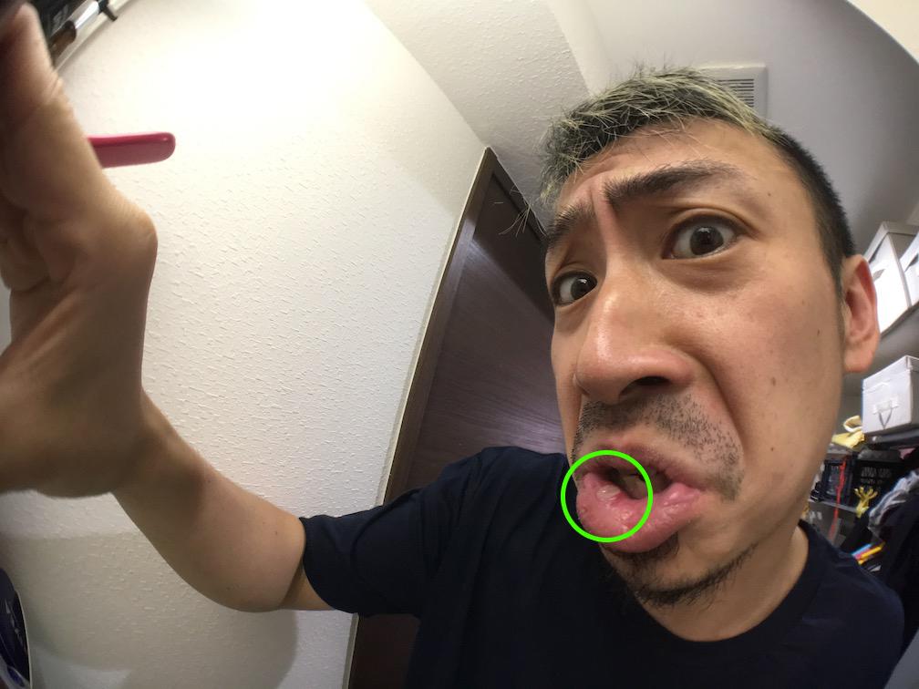 口内炎 レーザー治療 3日目